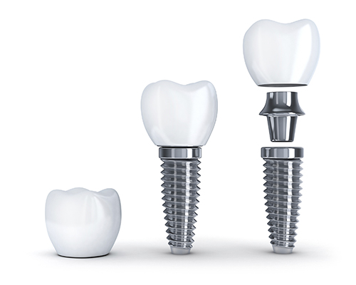 Rendering image of dental implant structure